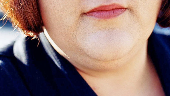 Say Goodbye to Your Double Chin Without Surgery!