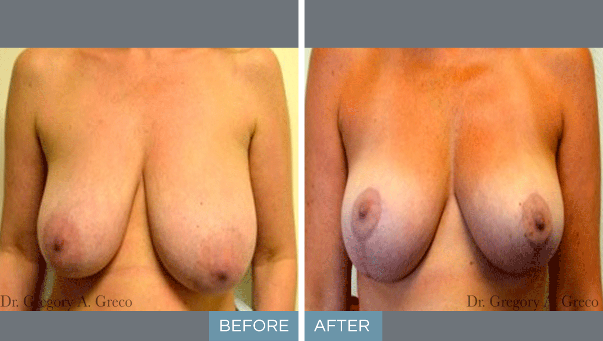 Breast Reduction (Female, 39)
