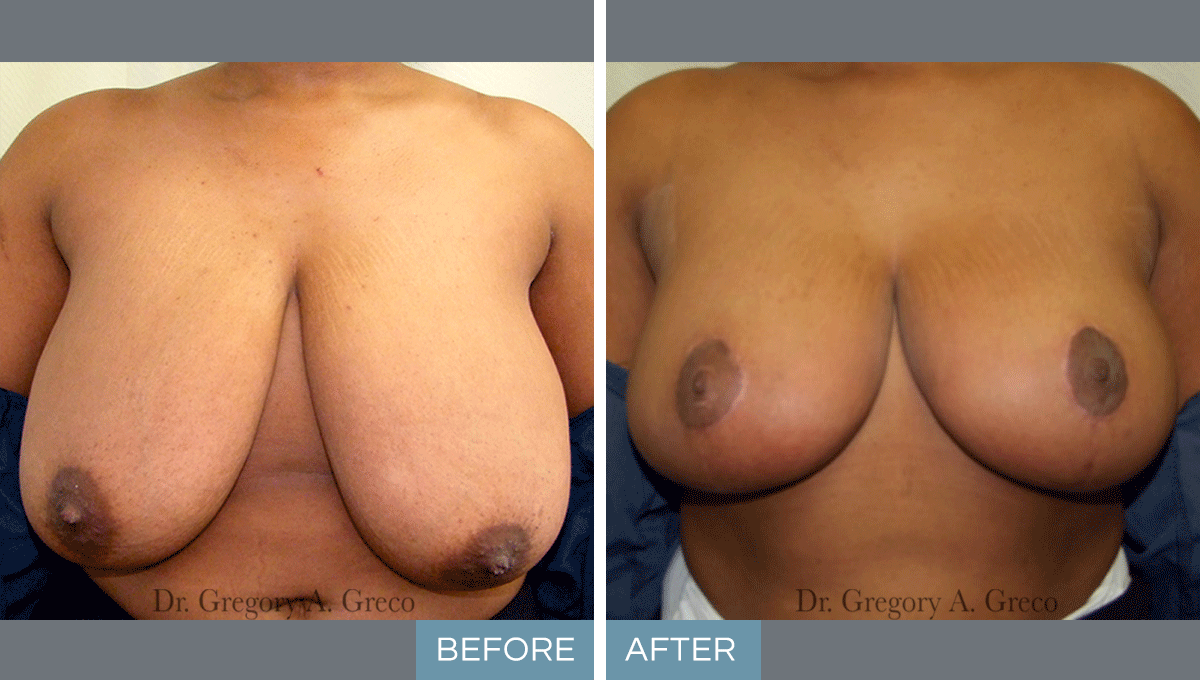Breast Reduction (Female, 25)