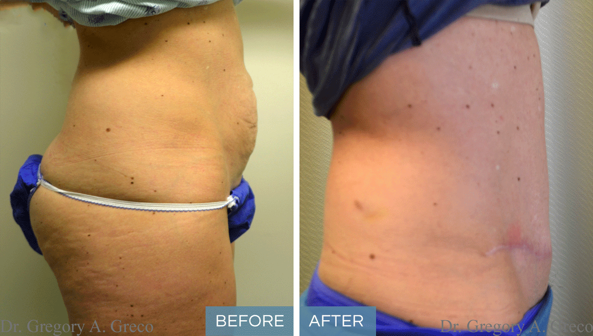 Click Here for More Before and After Photos - Dr. Gregory ...