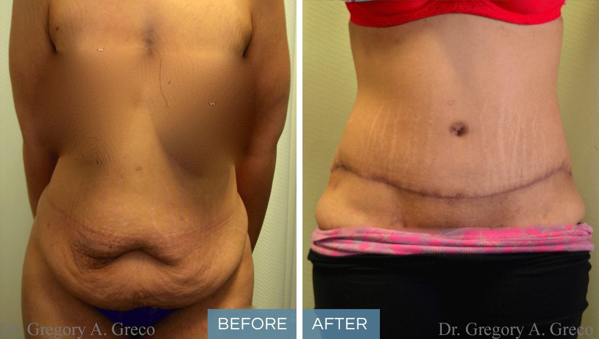 Before After Abdominoplasty Dr Gregory A Greco