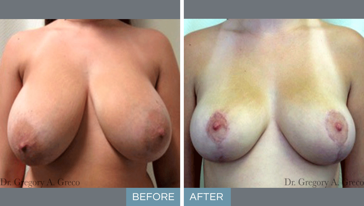 Breast Reduction (Female, 23)