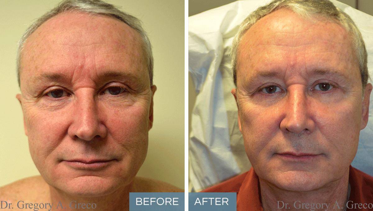 Facelift (Male, 60)