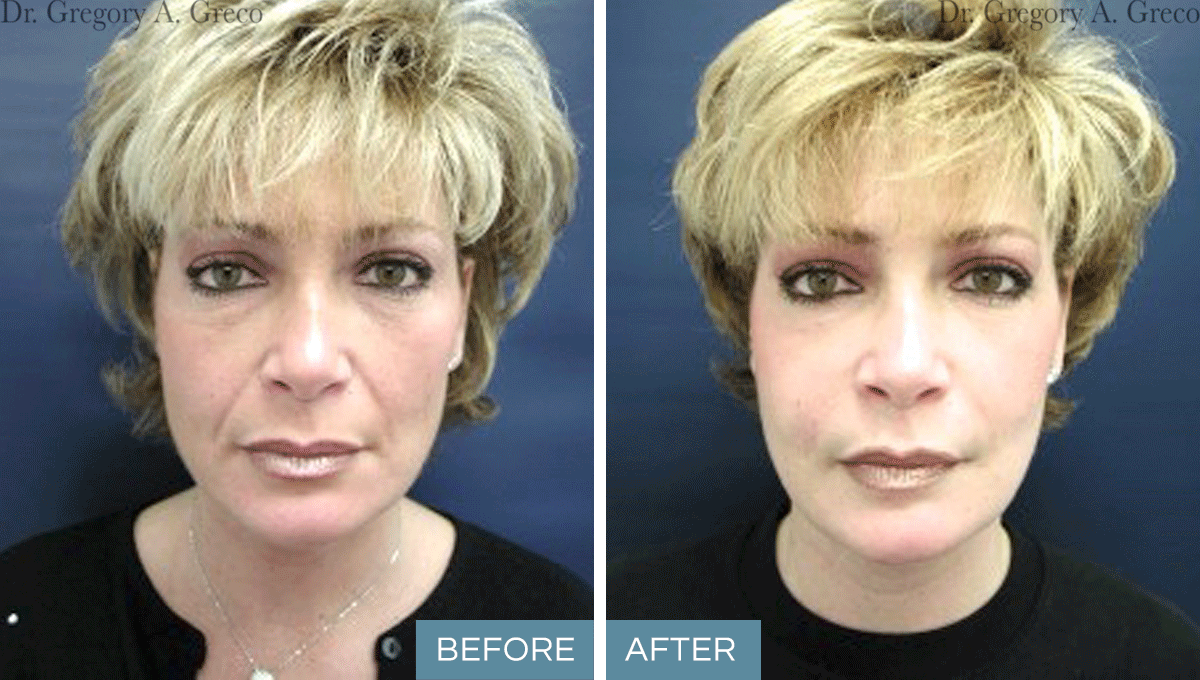 Facial Fat Grafting (Female, Age Undisclosed)