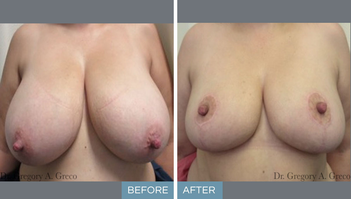 Breast Reduction (Female, 42)