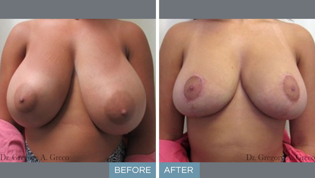 Breast Reduction (Female, 19)