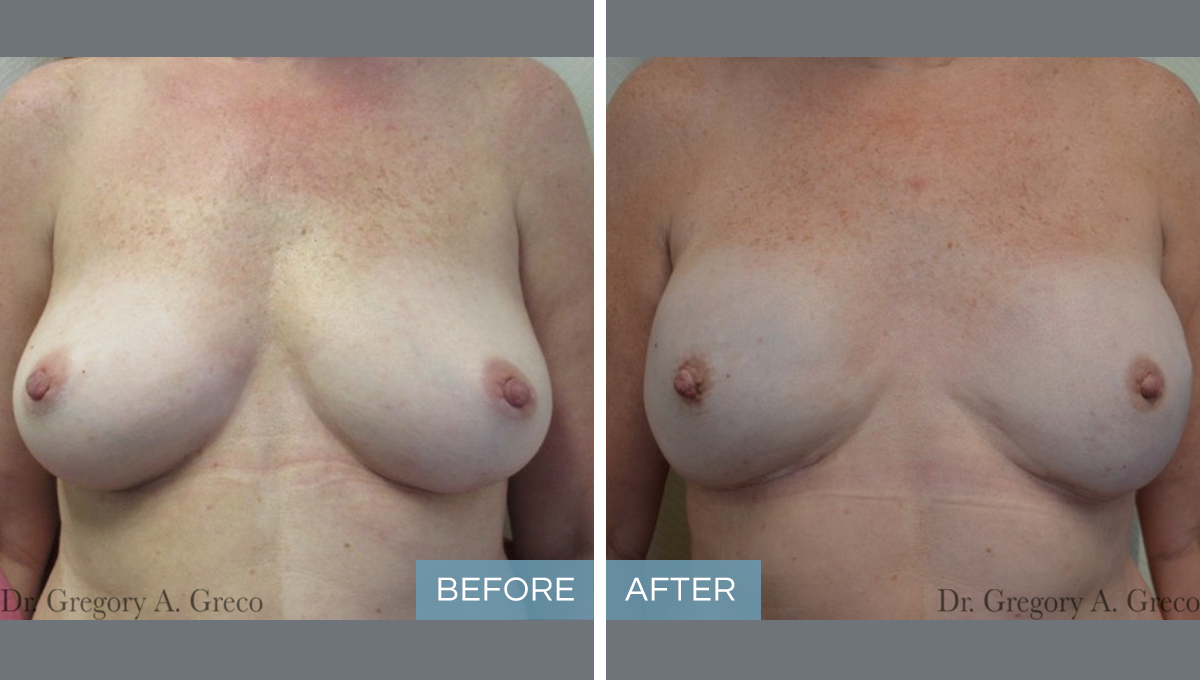Breast Reconstruction (Female, 50)