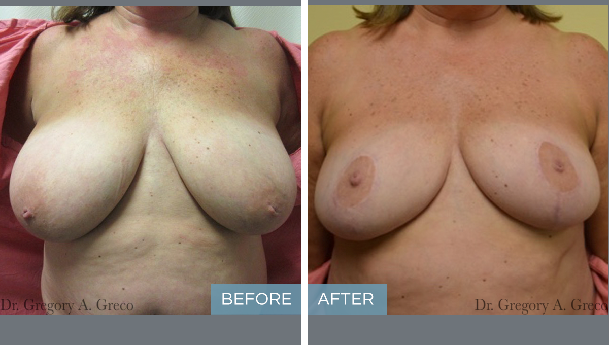 Breast Reduction (Female, 53)